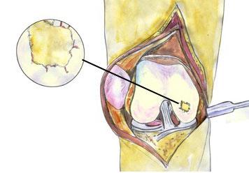 Χόνδρινες – Οστεοχόνδρινες βλάβες του γόνατος