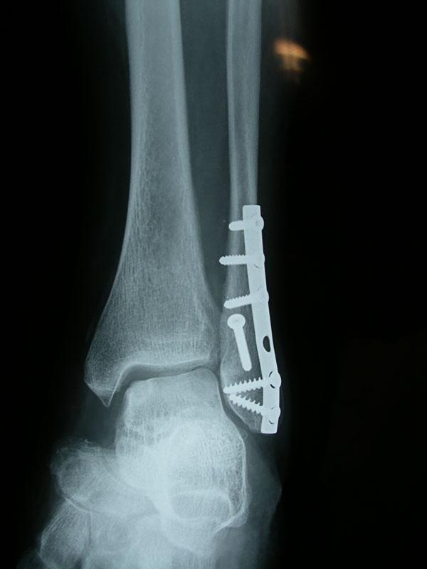 Χειρουργική Αντιμετώπιση - Οστεοχόνδρινη βλάβη αστραγάλου