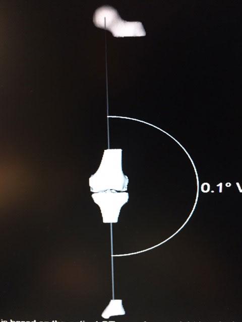 Εξατομικευμένη Αρθροπλαστική γόνατος