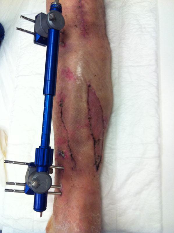 Χειρουργική αντιμετώπιση - Μονόπλευρο Σύστημα Εξωτερικής Οστεοσύνθεσης