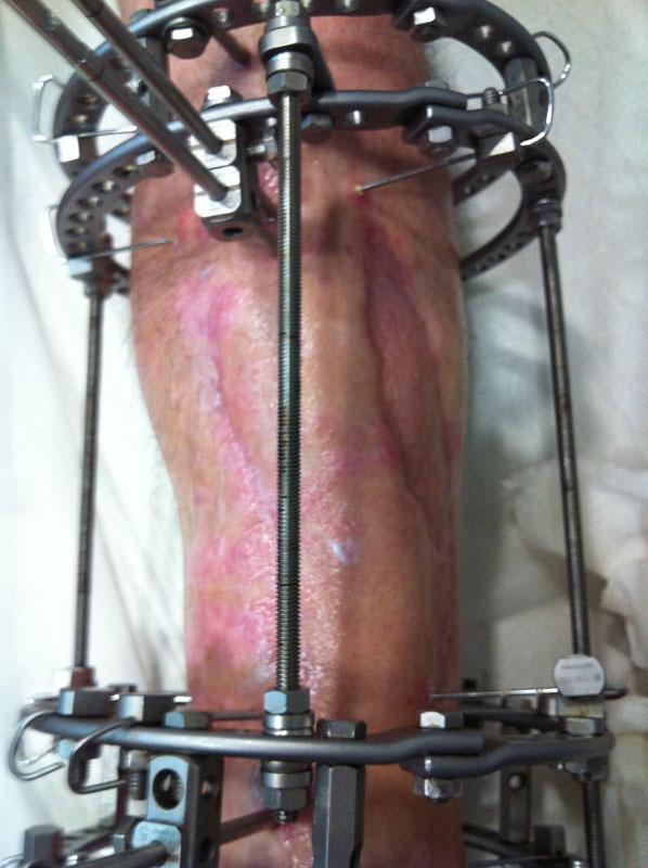 Χειρουργική αντιμετώπιση - Σύστημα Εξωτερικής Οστεοσύνθεσης Ilizarov