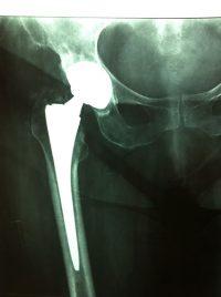 Ακτινογραφία ολικής αρθροπλαστικής ισχίου