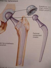 Σχηματική απεικόνιση εμφυτευμάτων αρθροπλαστικής ισχίου