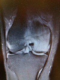 Σύνδρομο οστικού οιδήματος γόνατος