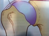 Ρήξη μυοτενοντώδους πετάλου